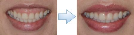 上唇粘膜切除術