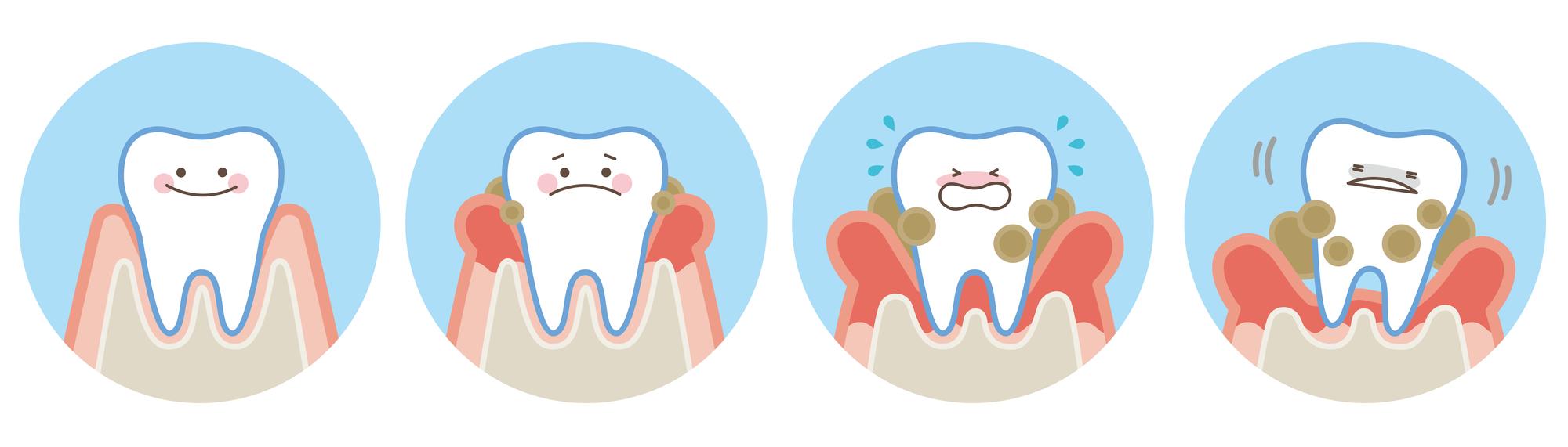 の 痛い 時 食事 が 歯